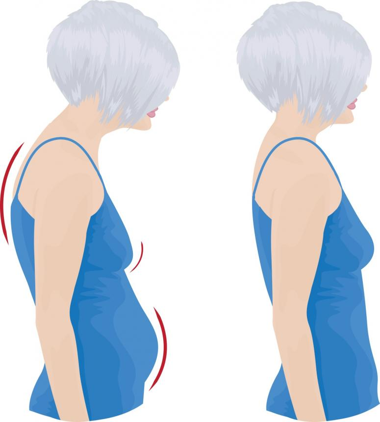 How A Chiropractor Can Help With Bad Posture